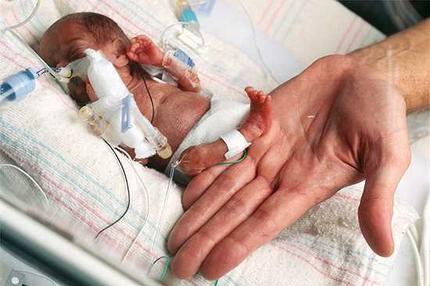 Historias increíbles sobre el parto