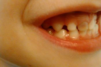 Потемнение молочного зуба