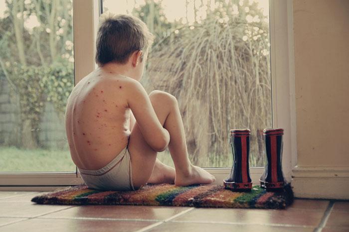 Chickenpox: a new epidemic?